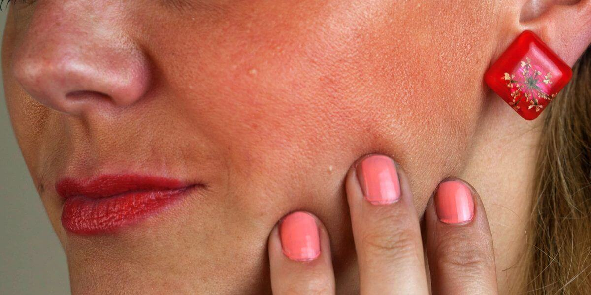 So You Think You Have Sensitive Skin?