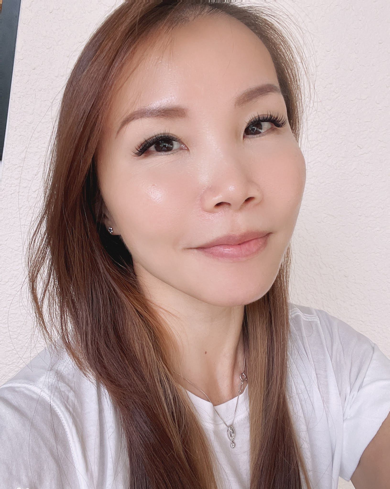 [ That Mom of Four ] The IDS (Innovative Dermatological Solutions) Journey - Third Visit