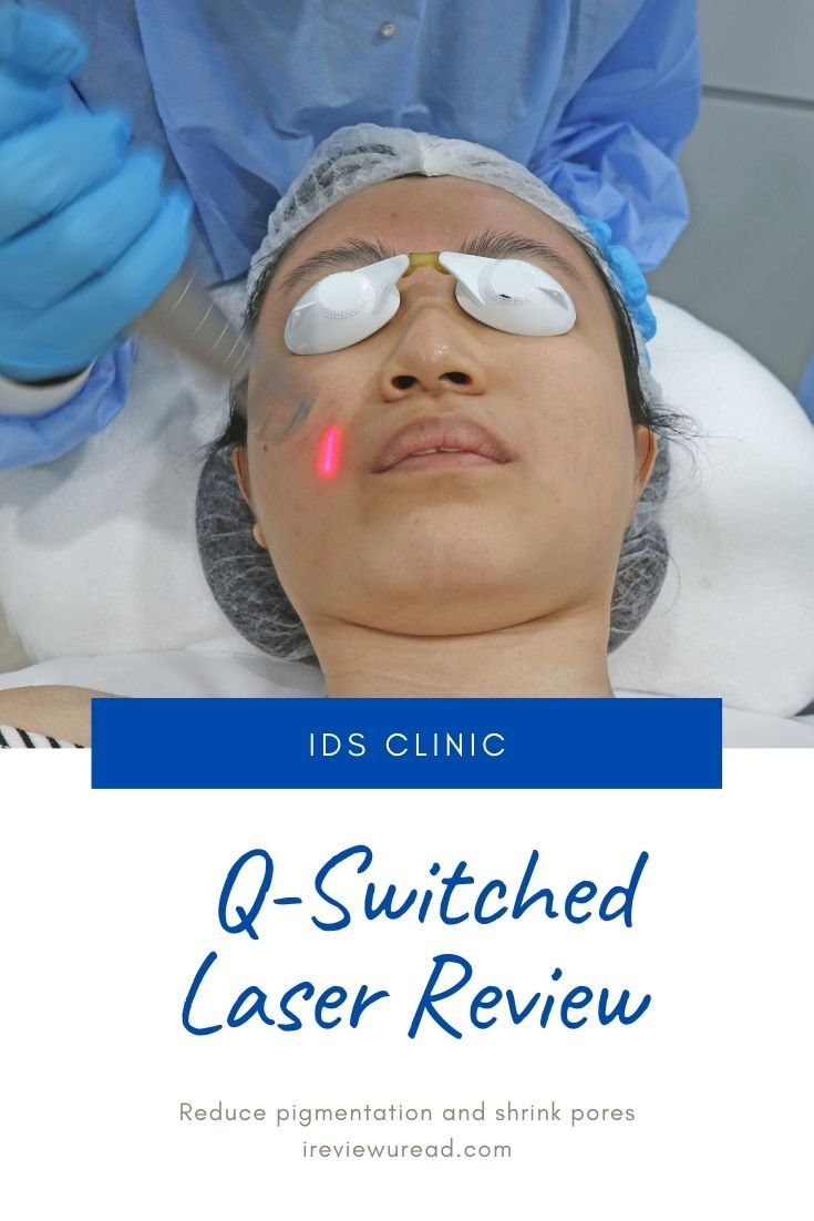 [ Shi Hui ] How I Reduce Pigmentation with Q Switch Laser Treatment pairs with IDS Skincare!