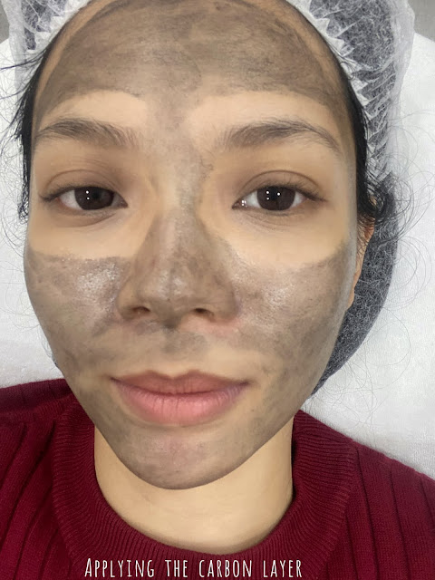 [ Joy ]  Review: IDS Carbon Laser | Why did I take so long to give laser treatments a try?!