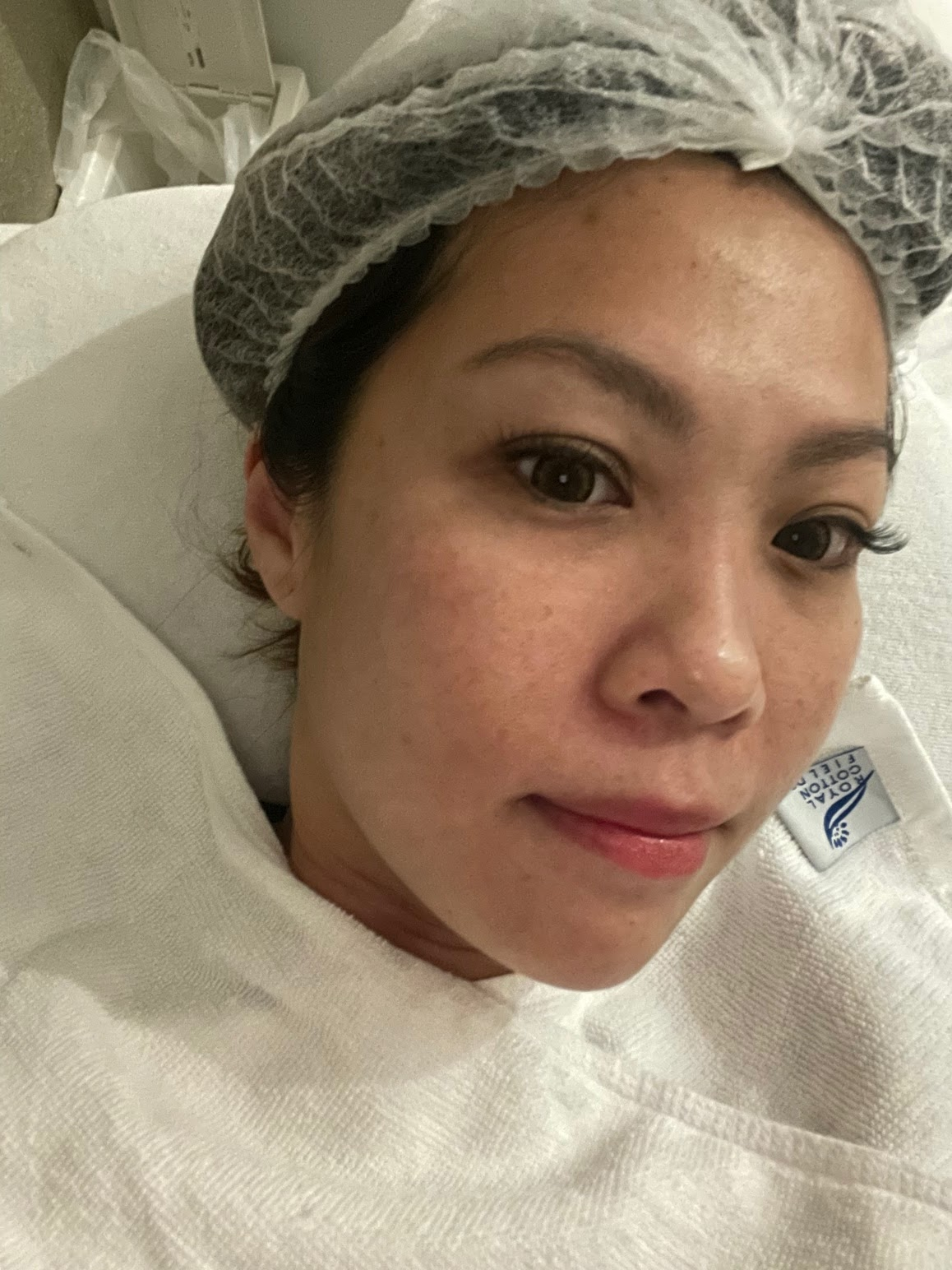[ Cherlynn ] 2nd Visit: Facial with IDS Aesthetics