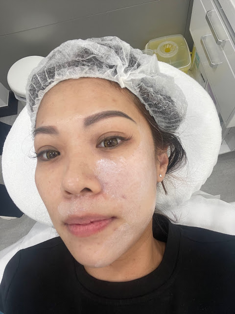 application of numbing cream