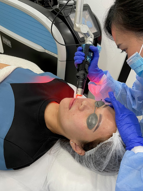 During the Laser Treatment