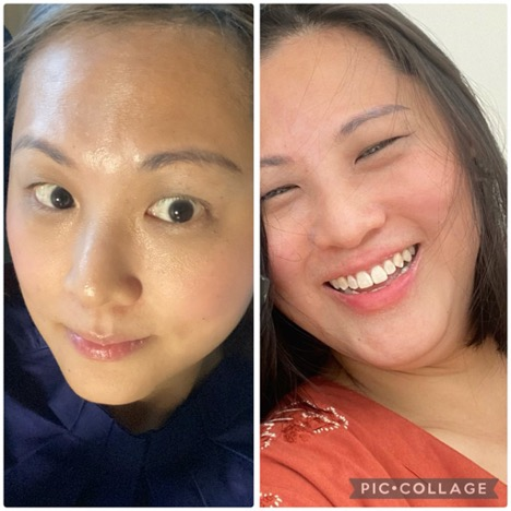 On the right is the patchy, red, flaky dry skin I started having since face-mask wearing, and on the left, is after a day's work which is not super oily and with zero flaking after using my prescribed IDS skincare range.