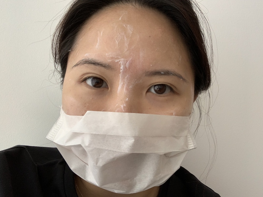 As a first step, the beautician applied a numbing cream.