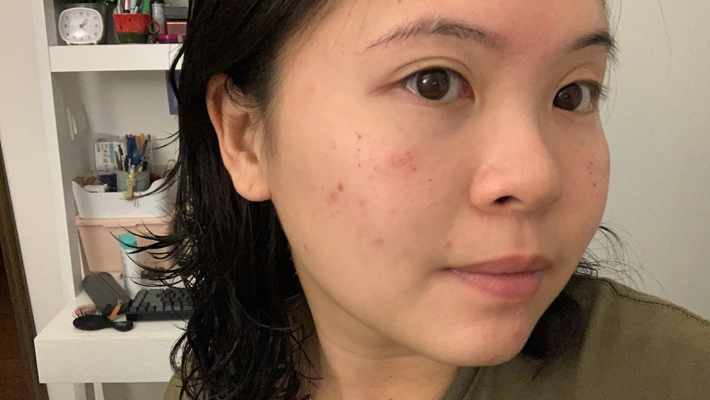 A day or two after the treatment, you can expect mild redness on your skin as well as the darkening skin pigmentation and scabbing.
